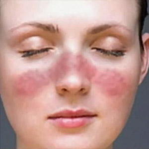 Derrotando al Lupus, Testimonios