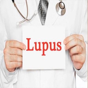 Medicina tradicional para Lupus